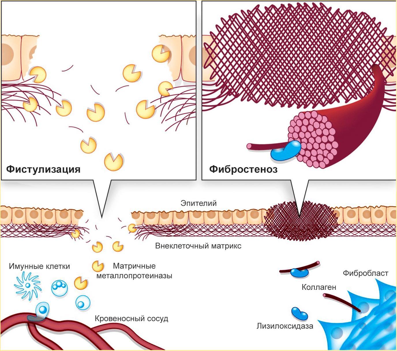 При болезни Крона происходит фистулизация и фибростеноз кишечника