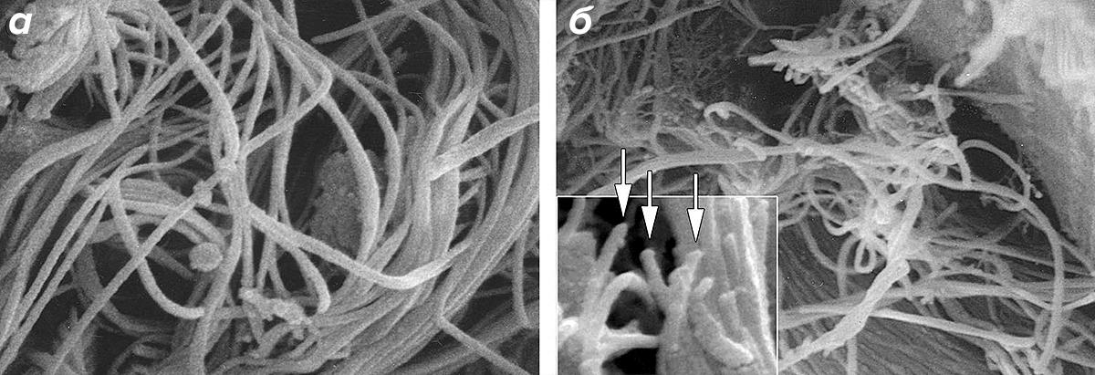 Микрофотография коллагеновых нитей в коже