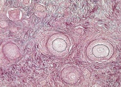 Нанотехнологии в лечении бесплодия