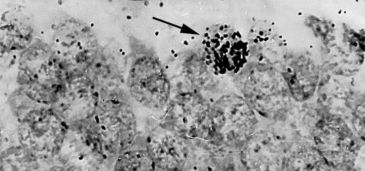 Признаки взрослого нейрогенеза