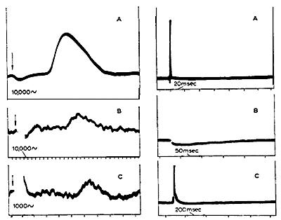 Первая классификация нервных волокон