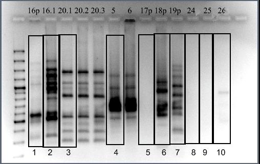Электрофореграмма продуктов Box-PCR