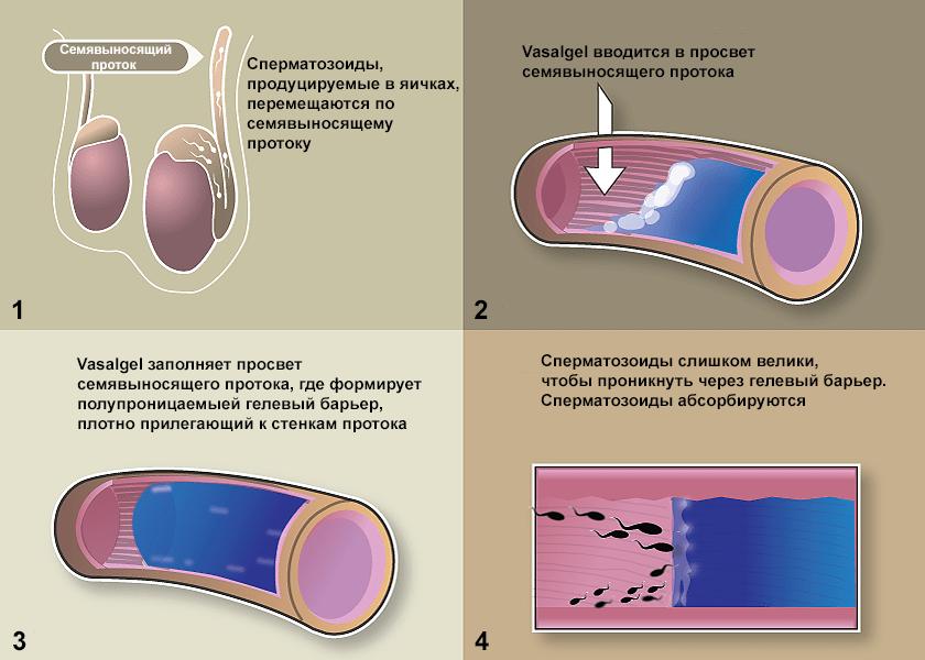 Презервативы их водействие на женский оргазм