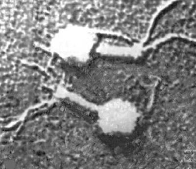 Микрофотография фага Т2