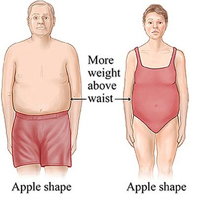 Фигура типа «яблоко»
