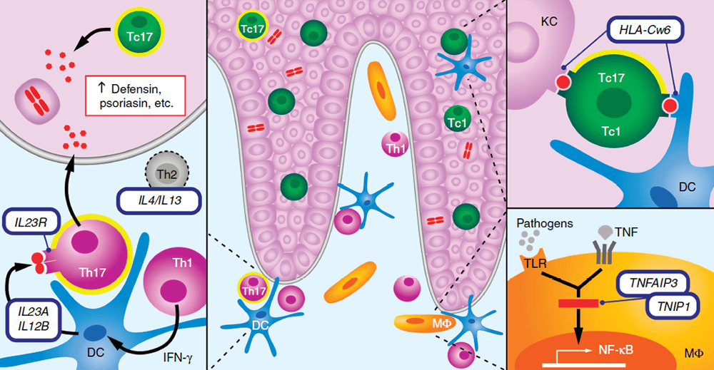 На стыке генетики и иммунологии псориаза