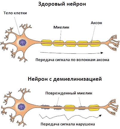 Здоровый и поврежденный нейроны