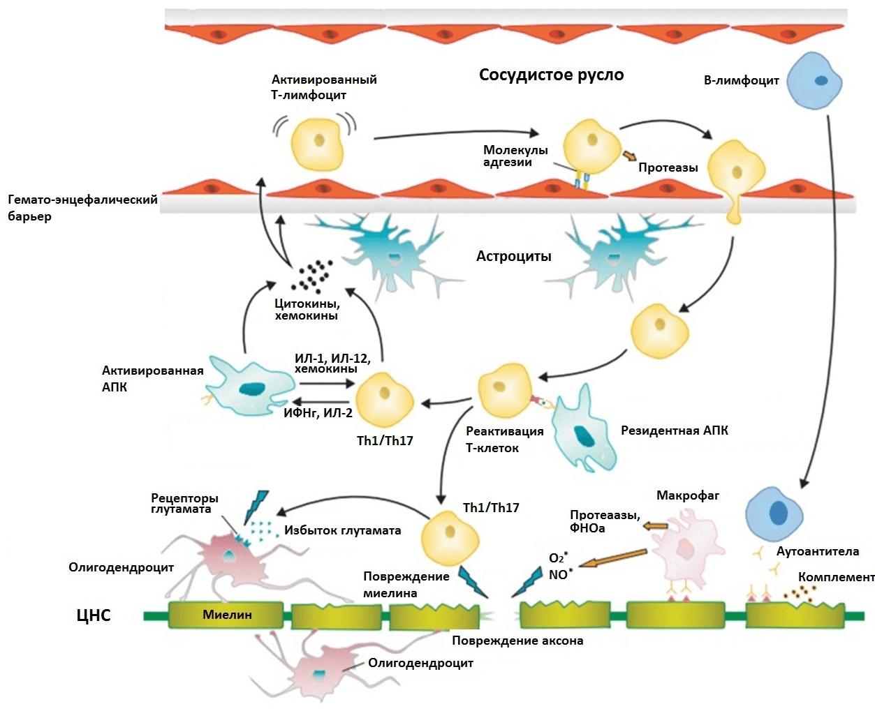 Основные стадии патогенеза РС