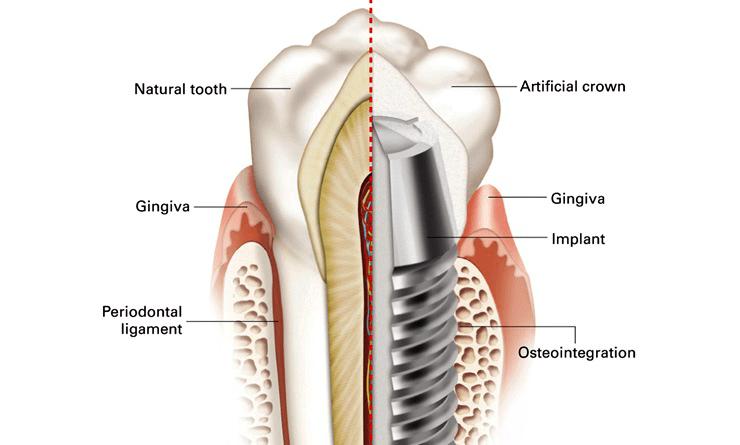 Строение зуба и имплантата