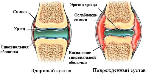 Патологические изменения в суставе