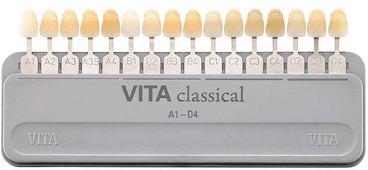 Пример системы визуального определения цвета зубов