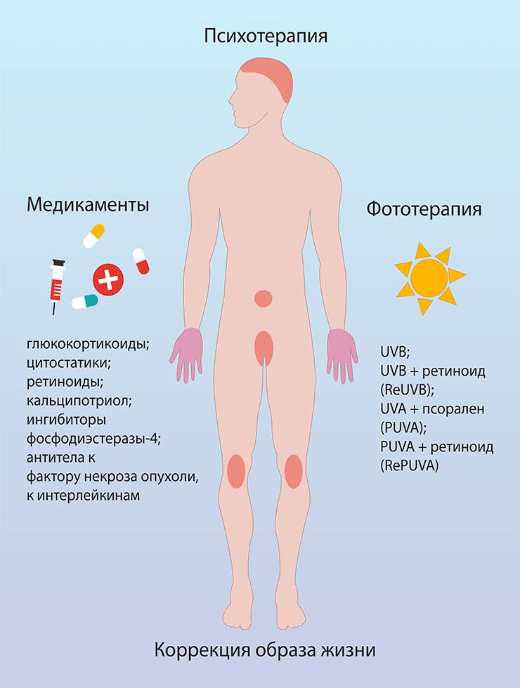 Псориаз причины симптомы фото виды и лечение псориаза