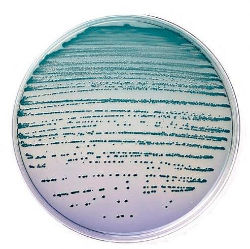 Культура бактериальных клеток на чашке Петри