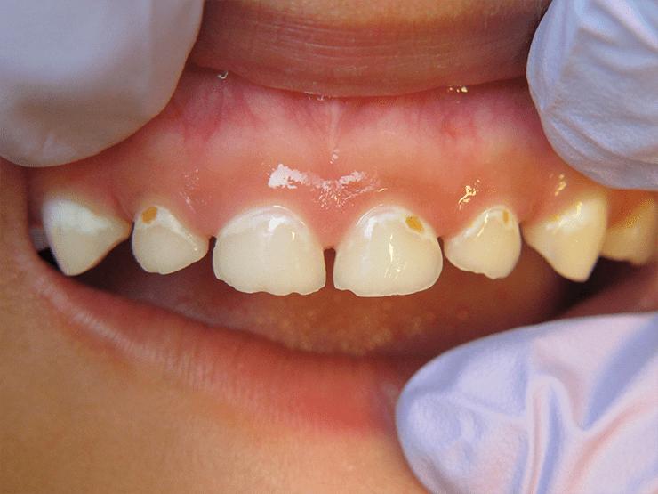 Повреждения зубной эмали у детей при кариесе