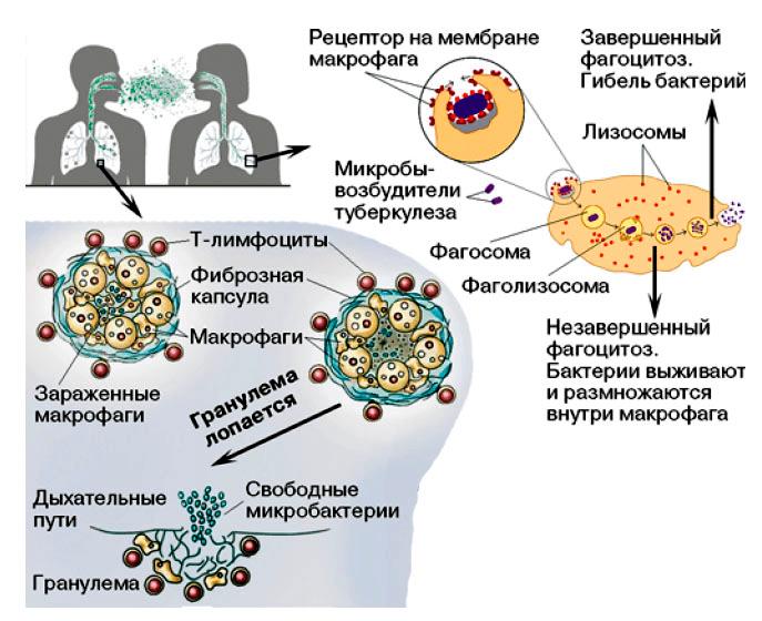 Судьба Mycobacterium tuberculosis в организме хозяина