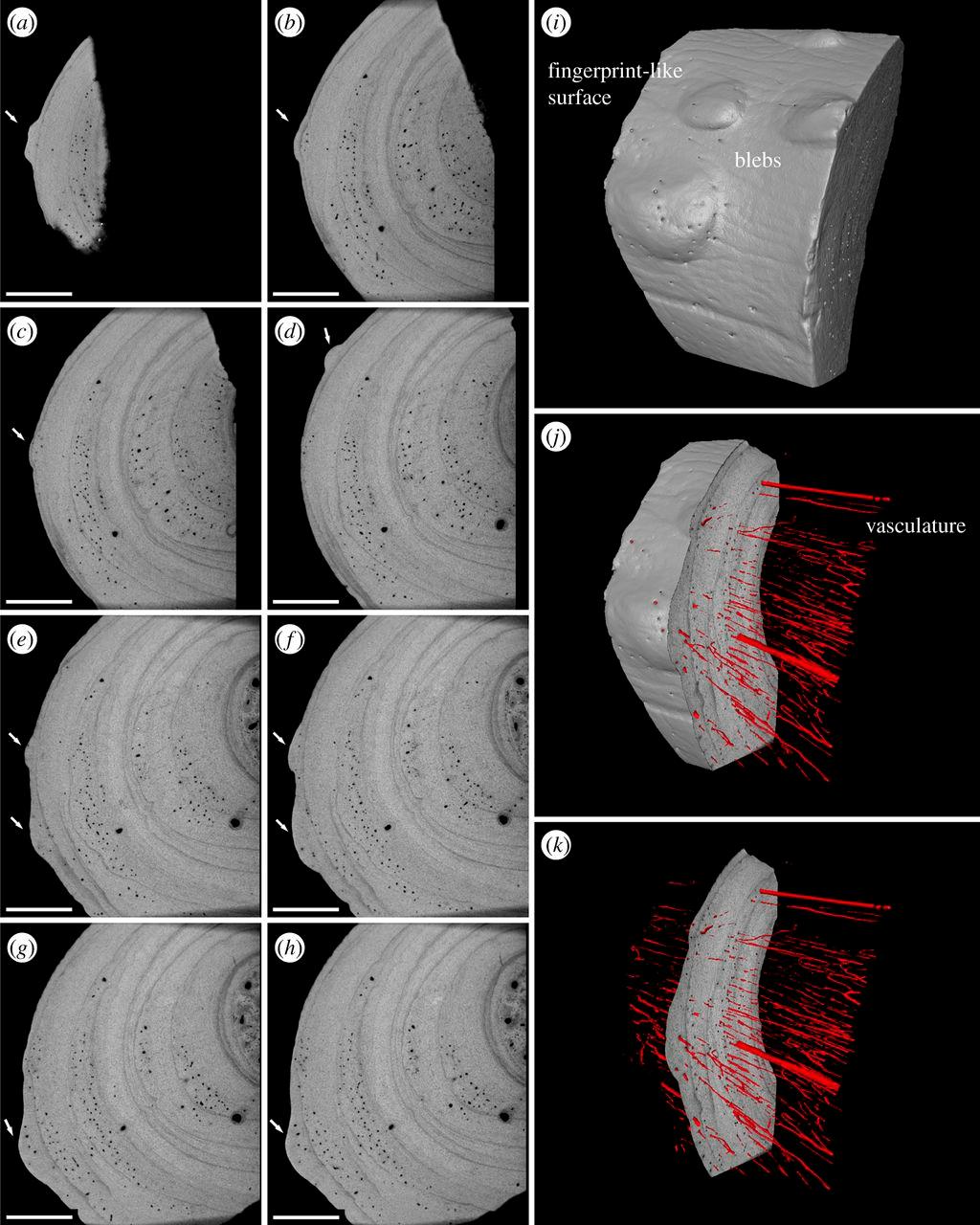 Патологические изменения в костной ткани ребер древней рептилии