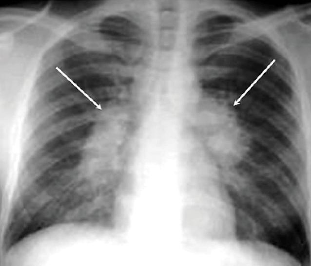 Туберкулез на рентгеновском снимке легких