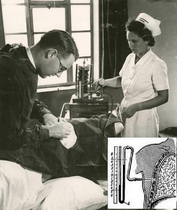 Искусственный пневмоторакс