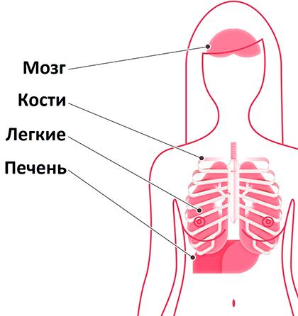 Очаги возникновения вторичной опухоли при РМЖ