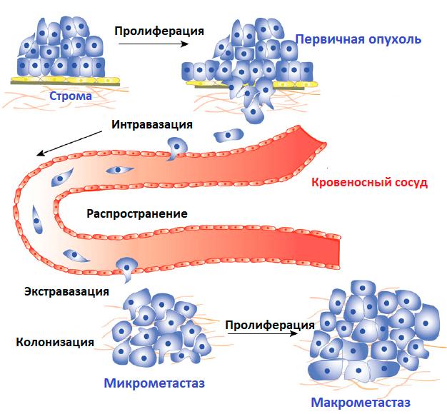 Распространение раковых клеток по кровеносной системе