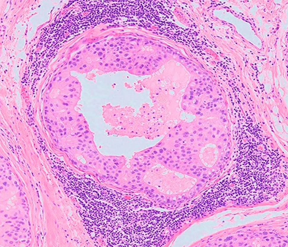 Лимфоциты, окружающие опухоль