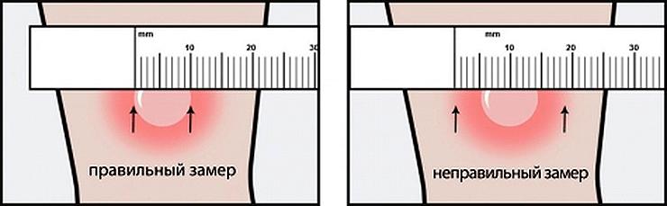 Правильная и неправильная оценки диаметра папулы
