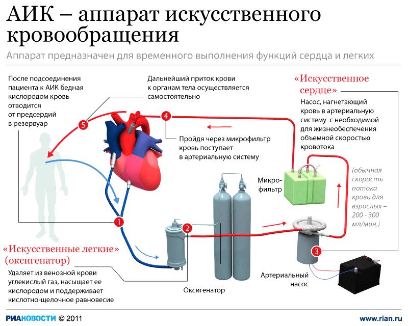 Картинки аппарата искусственного кровообращения