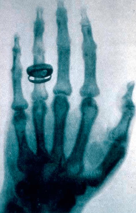 Снимок руки Альберта фон Кепликера