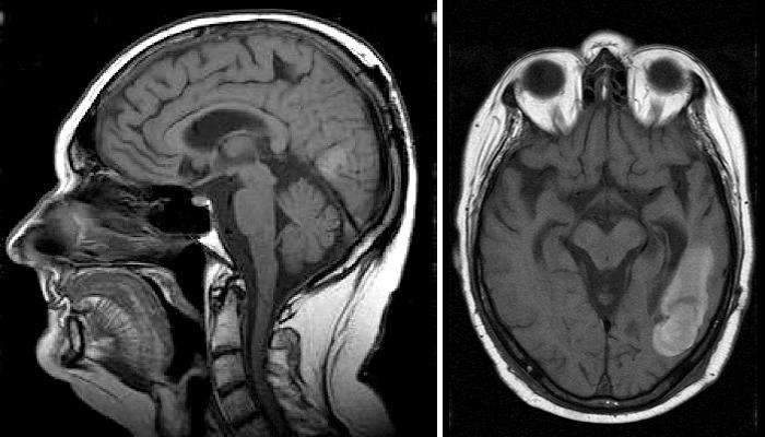 МРТ-снимки головного мозга человека