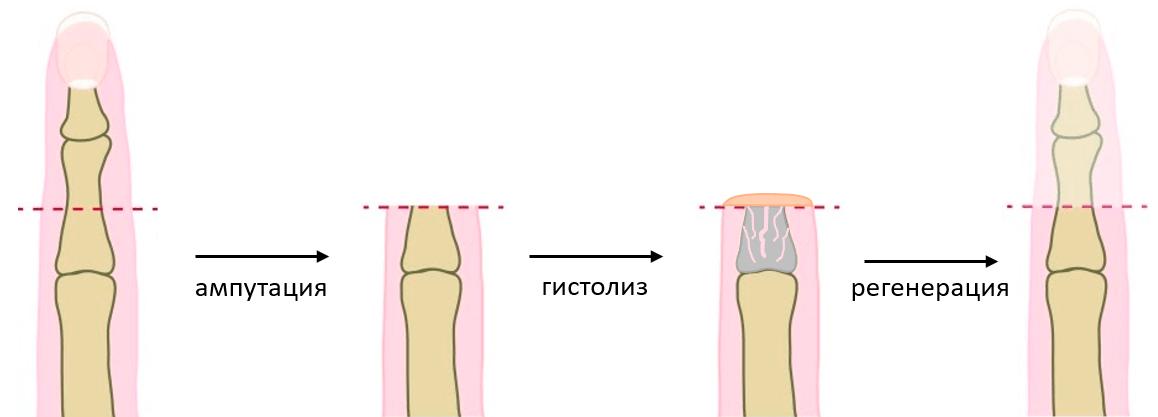 Гистолизу подвергается преимущественно костная ткань