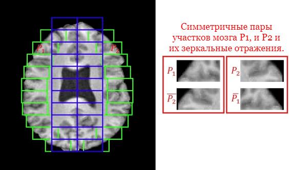 Инженерный подход к обучению сверточной нейросети