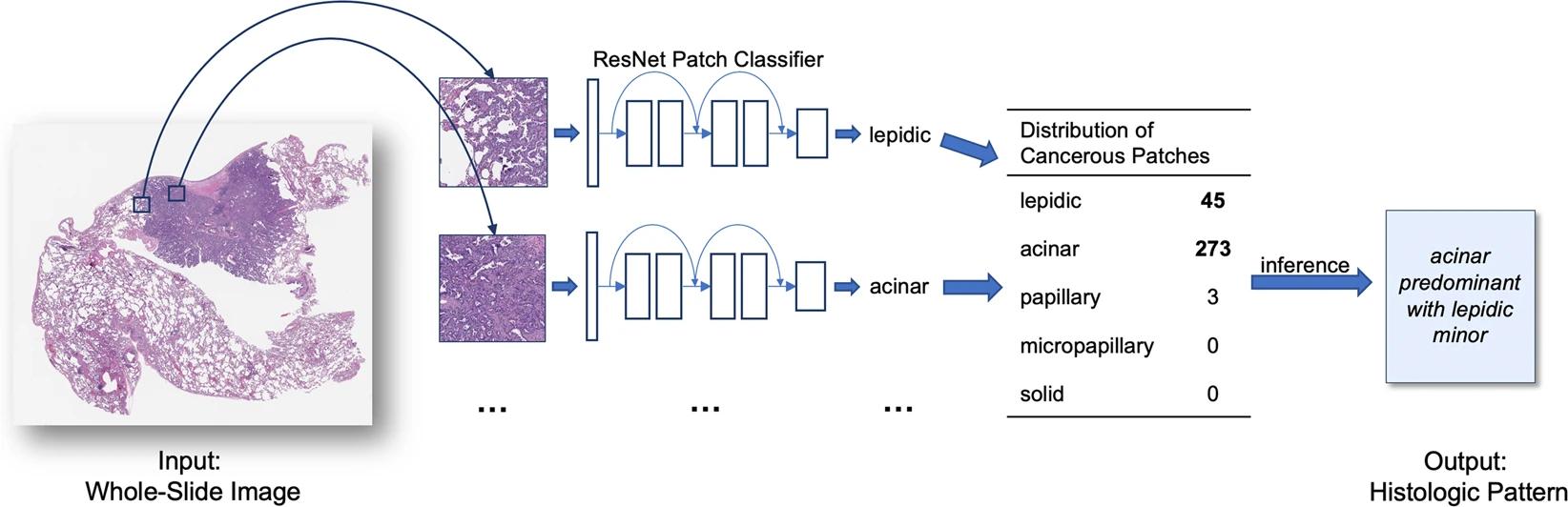 Нейронная сеть определяет раковые участки всрезах легкого
