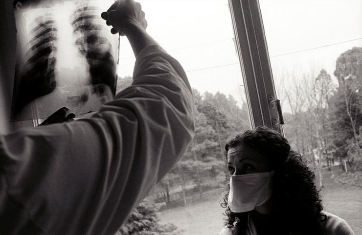 Сколько времени занимает лечение туберкулеза