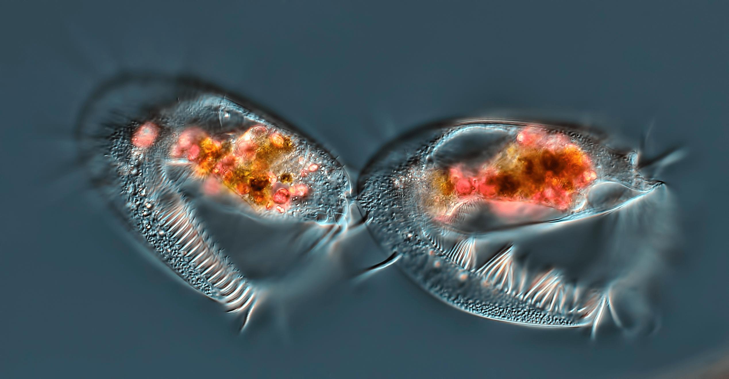 Завершающая стадия клеточного деления инфузории