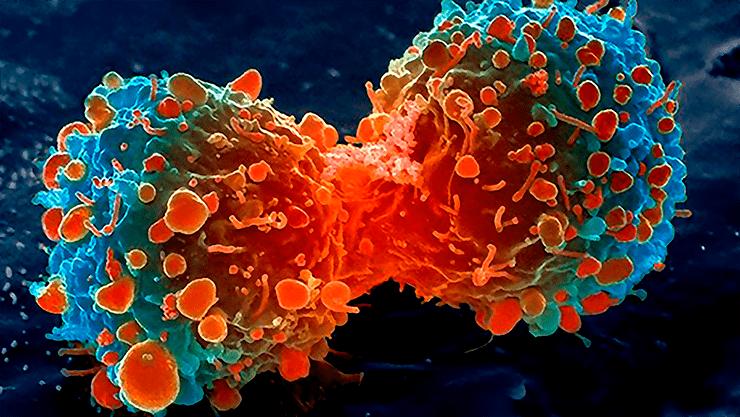 Пролиферация раковых клеток легкого