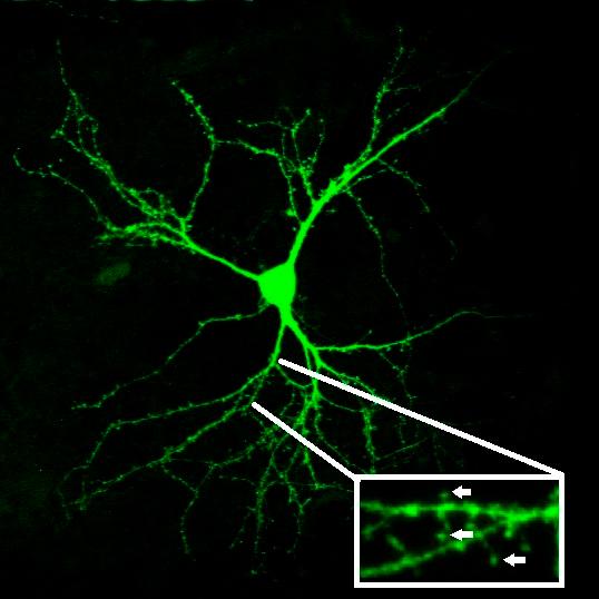 Дендритные шипики на поверхности стриатного нейрона