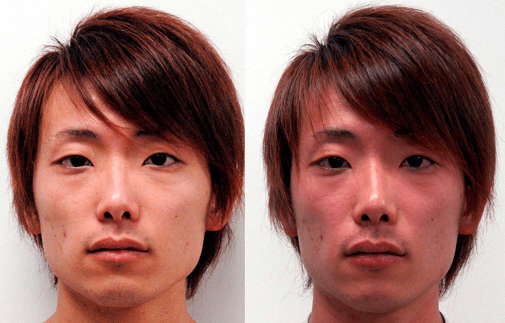 Непереносимость алкоголя у молодого азиата (гетерозигота)