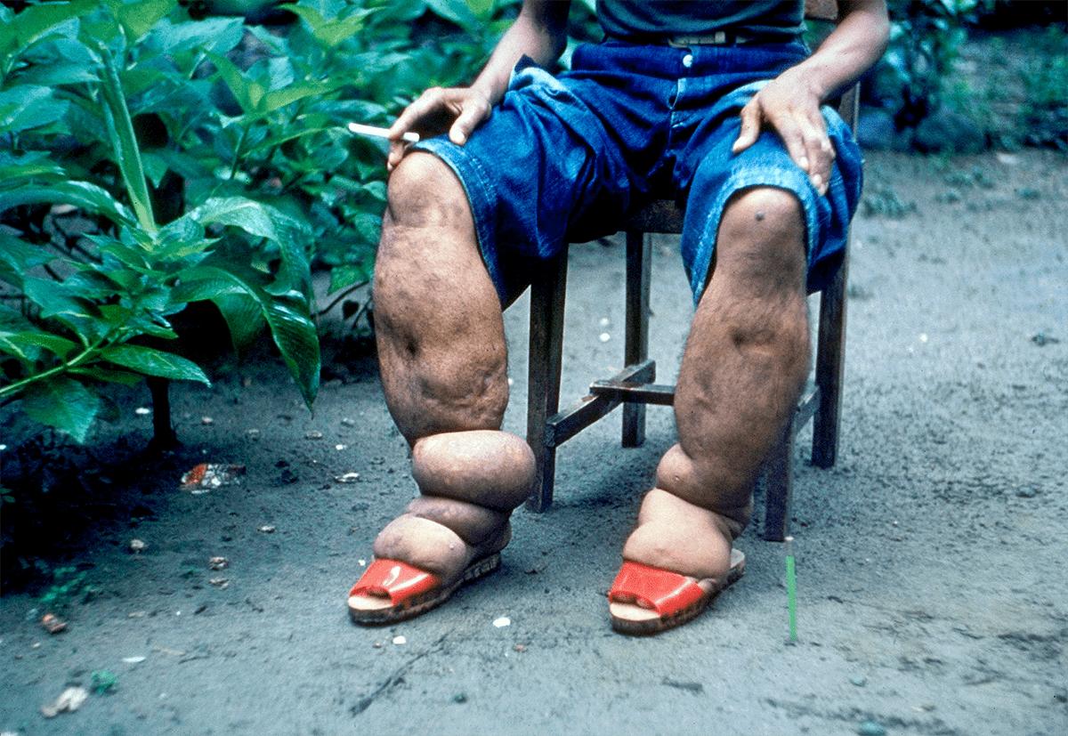 Элефантиаз ног из-за филяриоза