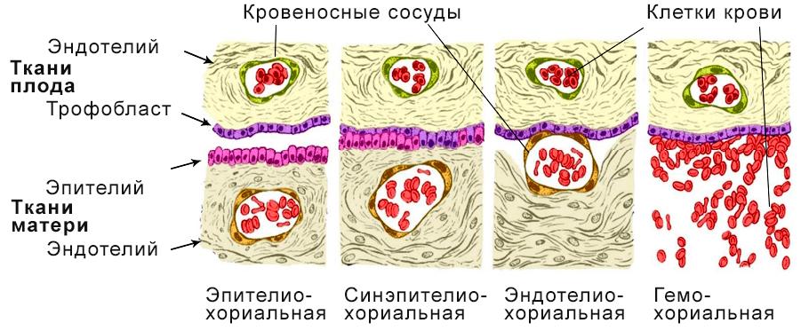 Классификация плаценты по степени инвазии
