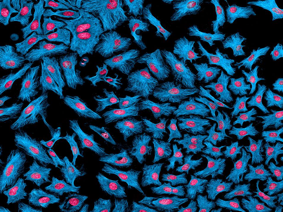 Клеточная линия HeLa